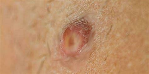 hairs on my inner thigh how to get rid of boils on inner thigh top 10 home remedies