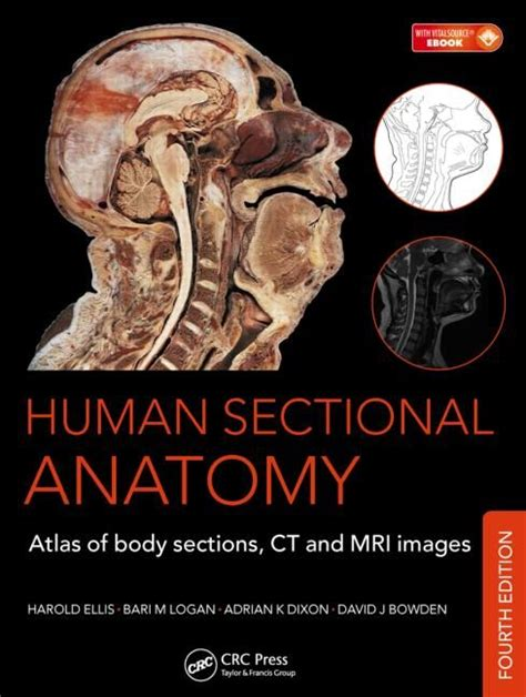 Cross Sectional Anatomy Pdf by 75 Best Images About Mri Technology On