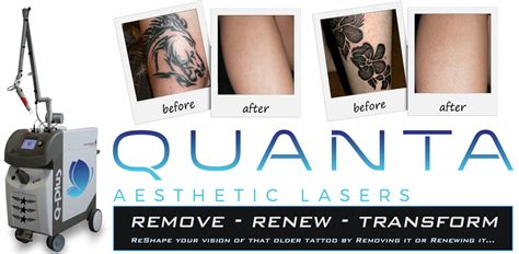 tattoo removal kelowna flashpoint company kelowna shop and