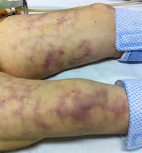 Side Elevation sides ref anesthrea item 328 septique diagnostic wiki sides