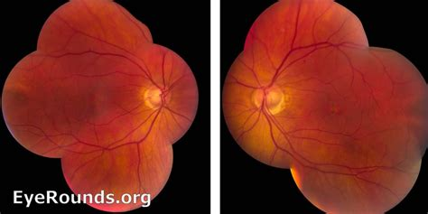 pattern dystrophy eye disease pattern dystrophy