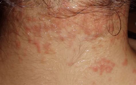 itchy rash on face and neck image gallery lymphoma rash itching