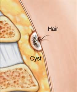 pilonidal cyst drainage at home pilonidal cyst pictures surgery removal treatment