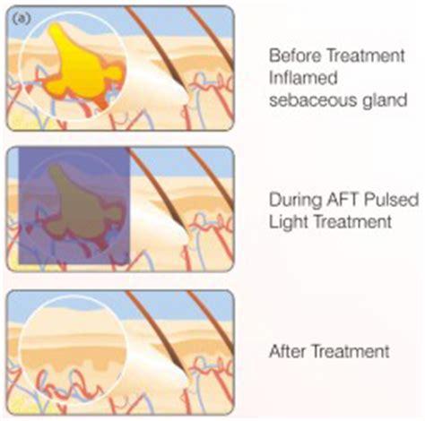 Pulsed Light Treatment by Dr Krupa Shankar Dermatologist Bangalore Skin Diagnosis