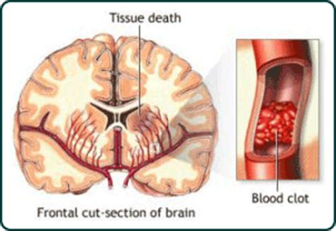 Blood Clot After C Section Symptoms by Stroke