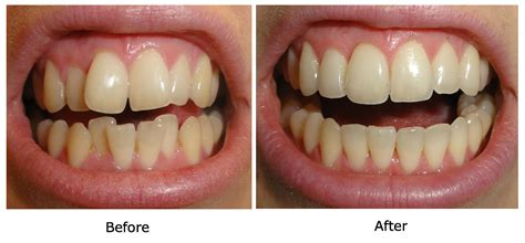 Smile Before Talk talking my invisalign experience in the uk start to finish wonky to