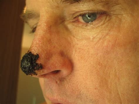 Nose Up Pemancung Hidung Look At Trade black salve basal cell carcinoma skin cancer nose health other i want and