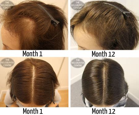 female pattern hair loss natural remedies hair growth success i m happy with that treatment and