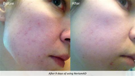 Skin Purging Detox by Nerium The Poisonous Plant Turned Into A Poisonous Multi