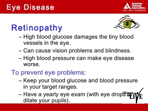 Can Stroke Cause Blindness can a stroke cause blindness 28 images diabetes mellitus ppt here are 10 of the scariest