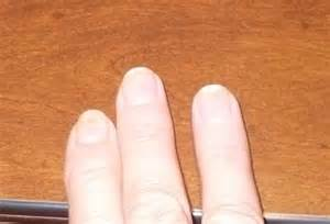 nail detached from nail bed nails detaching from nail bed beautify themselves with