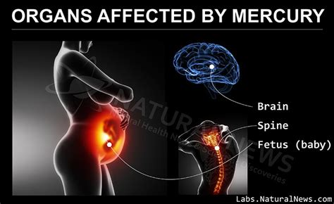 Mercury Detox Brain Damage by The Age Of Toxicity Solutions Detox Guide Usnewsghost