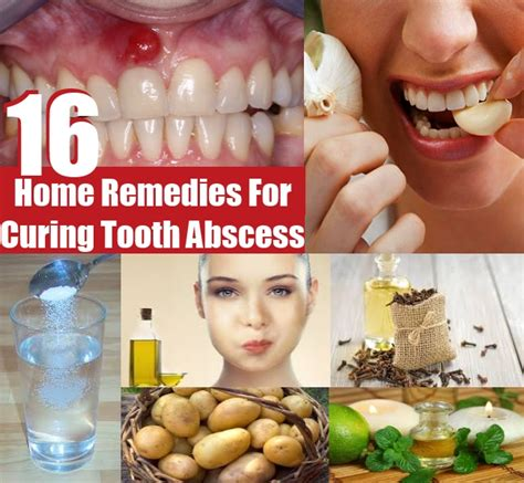 Detox Bath Abscessed Tooh by Top 16 Excellent Home Remedies For Curing Tooth Abscess