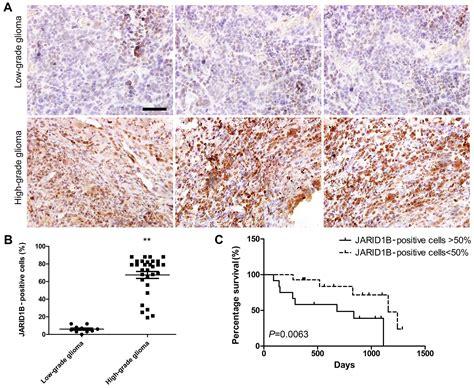 pattern analysis glioma jumonji at rich interactive domain 1b overexpression is