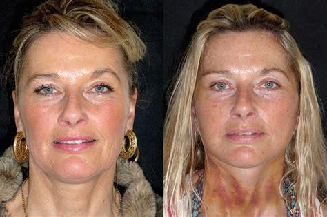 face lifts for women over 50 face lifts for women over 50 face lifts for women over