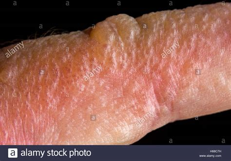 Pictures Of Poison Rash On Skin