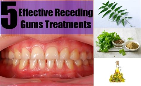 5 effective receding gums treatments simple and