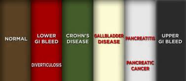 From doctor oz here http www doctoroz com videos poop color char t