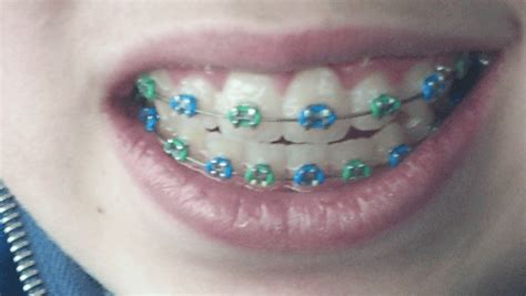 braces color ideas the world s catalog of ideas