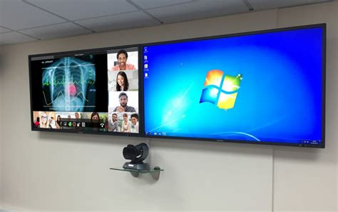 meeting room display screen brighton sussex hospital nhs trust upgrading mdt rooms videocentric the uk s