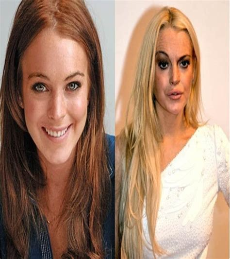 375 best images about celebrity plastic surgery on pinterest 20 of the worst celebrity plastic surgery disasters page