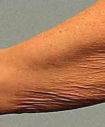 crepey skin on arms 31 best skin care images on pinterest