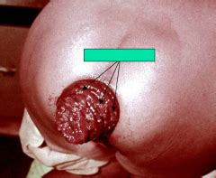 aleve side effects rectal bleeding helminths i luminal nematodes flashcards cram