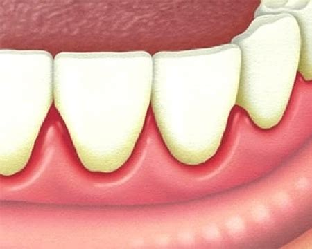 bolle sulle labbra interne afte bolle in bocca e sulla lingua