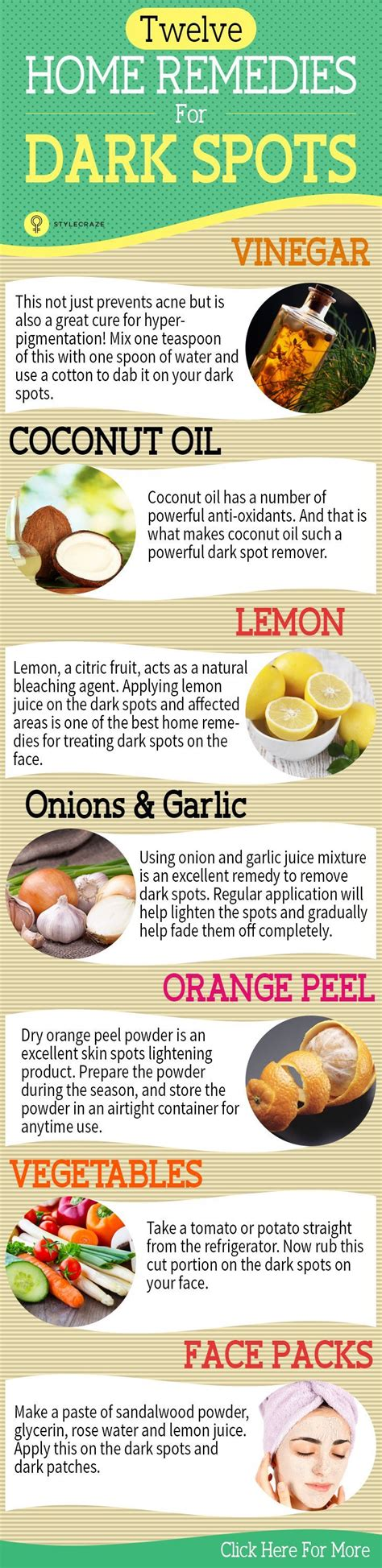 spot home remedy 25 home remedies for spots that are guaranteed to work spots on on and
