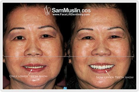 with underbite underbite treatment with dentures cosmetic dentistry and bite correction