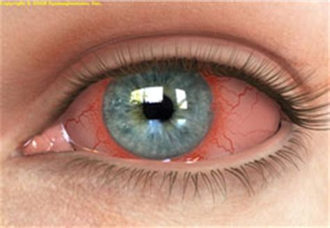 Can Conjunctivitis Cause Blindness eye conditions that cause blindness hairsstyles co