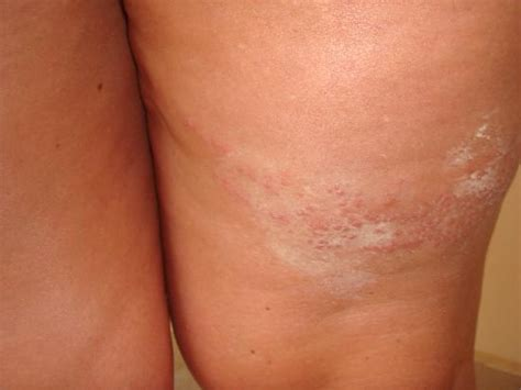 bed bug rash bed bug rash pictures to pin on pinterest pinsdaddy
