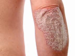 l for psoriasis what is psoriasis psoriasis of the skin cause elite