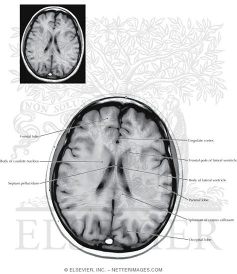 axial section axial horizontal sections through the forebrain level 8