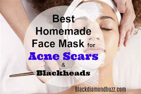 diy mask for acne scars diy mask for acne 7 best masks