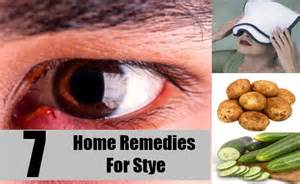top home remedies for stye treatments cure for