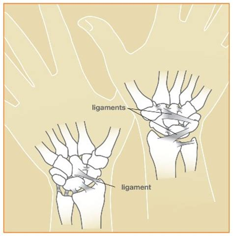 Wrist Sprains - Causes, Symptoms and Treatment - The Hand ... Fractured Wrist Treatment