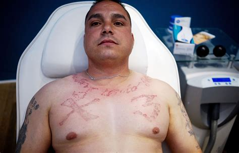 tattoo removal mexico what were you inking inside a removal clinic