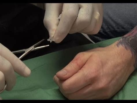 Modification Pearling by 3d Silicone Implant On The Thumb Modification