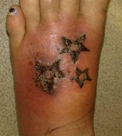 tattoo infection scab infected tattoos signs symptoms warning graphic