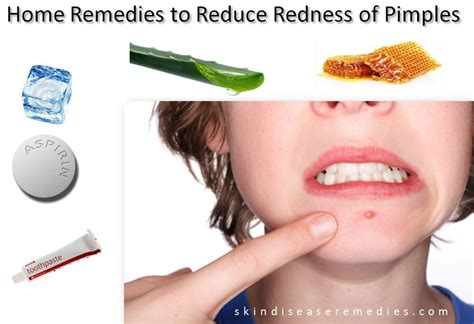 Home Remedies To Make You Go To The Bathroom by How To Reduce Family Feud