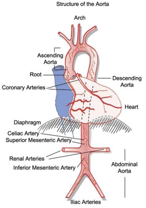 diagram of the aorta disease of the aorta cedars sinai
