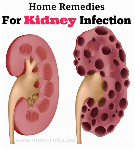 25 best ideas about kidney infection treatment on