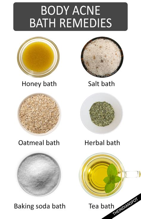 Detox Bath Recipe For Acne by Acne Remedies With Bath Recipes Theindianspot