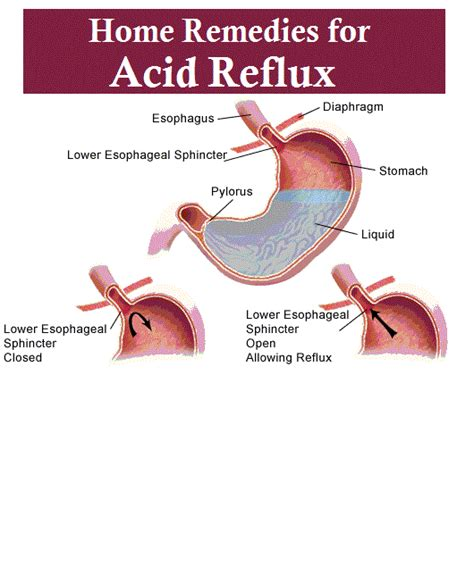 home remedies for acid reflux interesting