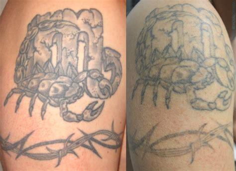 tattoo aftercare week 2 wie cool echtes tattoo f 252 r 1 jahr das neue ephemeral