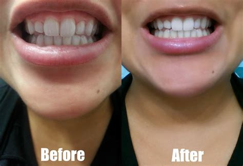 Whiteneng Whitening whiten professional teeth whitening at home system smile more with a brighter smile win your