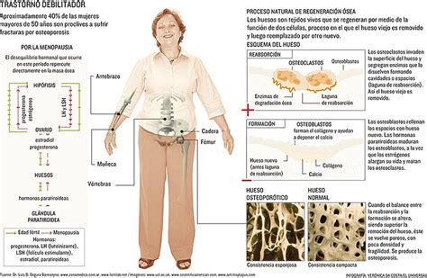 alimentos contra la osteoporosis 191 c 243 mo prevenir la osteoporosis