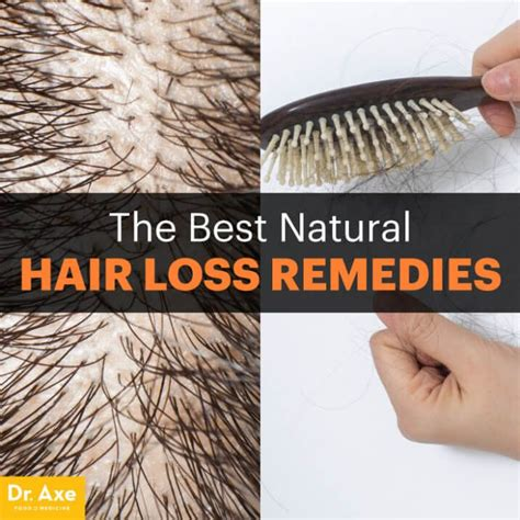 foods that kill dht in the body 365 best hair loss images on pinterest hair care hair