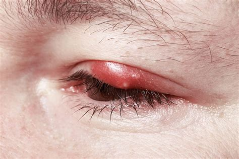 eye problems 6 eye symptoms you should not ignore
